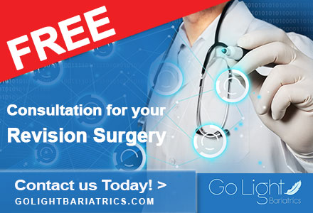 Cost Of Weight Loss Surgery In Mexico Go Light Bariatrics